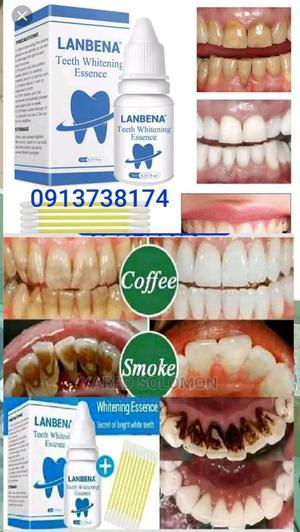 Lanbena Teeth Whitening | Bath & Body for sale in Addis Ababa, Bole