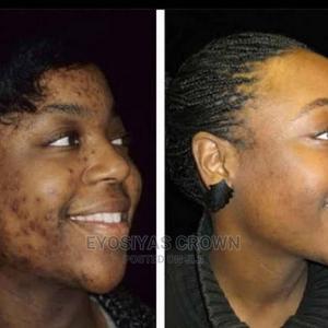 Dr. Ressel Bio Oil | Skin Care for sale in Addis Ababa, Bole