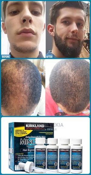 Minoxidil Oil   Hair Beauty for sale in Addis Ababa, Bole